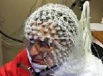 Диффузные изменения мозга