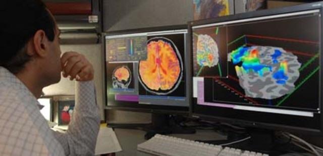 Симптомы нейроинфекции головного мозга