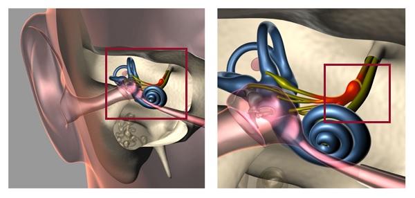 Вестибулярный неврит