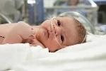 Гипоксии у новорожденных