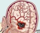Хроническое нарушение мозгового кровообращения