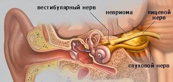 Невринома слухового нерва