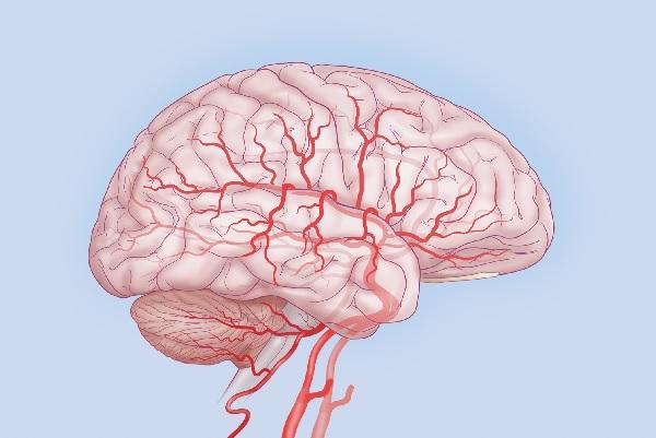 Основная причина ноющей головной боли