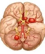 Сосудистая аневризма мозга