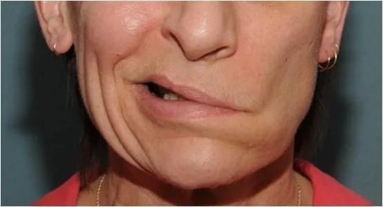 Онемение щеки
