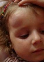 Гематома на голове после ушиба