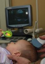 НСГ головного мозга новорожденных