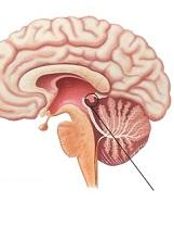 Опухоли эпифиза