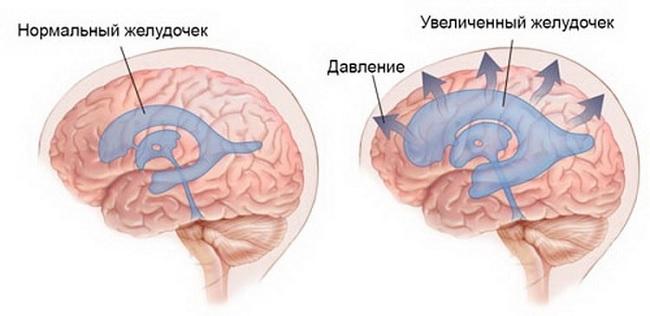 Гидроэнцефалопатия головного мозга