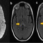 резидуальная энцефалопатия головного мозга