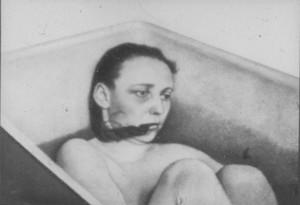 Шизофрения - фото больных