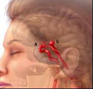 аневризматическая болезнь головного мозга