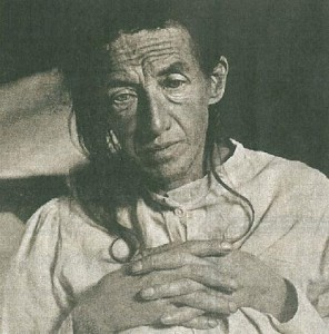 Болезнь Альцгеймера (симптомы) фото пациентки А. Альцгеймера Августы