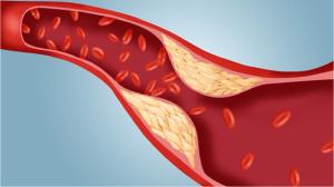 отложения холестерина