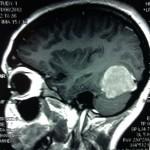 Опухоль головного мозга фото