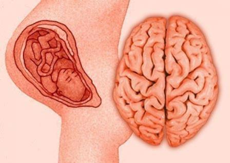 Гипоксически ишемической энцефалопатии у новорожденных
