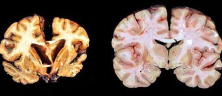 как выявить посттравматическую энцефалопатию
