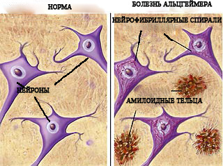 Передача Альцгеймера