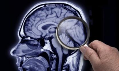Пргноз дименции при эпилепсии