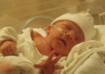 Ишемия головного мозга у младенца