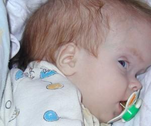 Водянка мозга у новорожденных