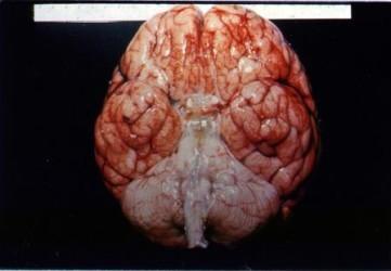 Последствия туберкулезного менингита