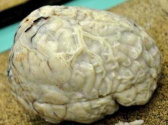 Клиническая картина менингита