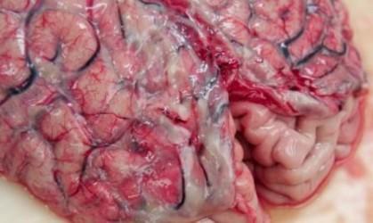 Осложнения менингококкового менингита