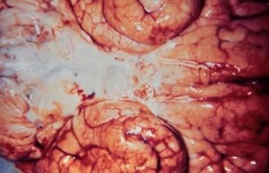 Возбудители серозного менингита