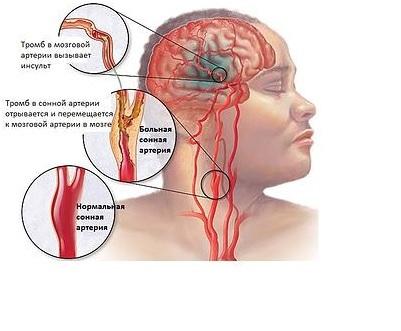 Церебральный атеросклероз сосудов головного мозга