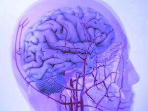 Лечение бляшек в сосудах головного мозга