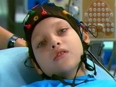Причины эпилепсии у ребенка