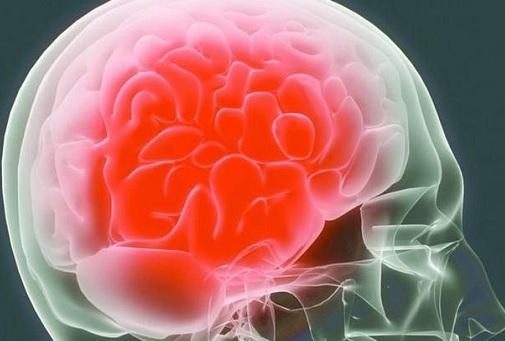Причины длительных головных болей