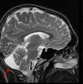 Ретроцеребеллярная киста головного мозга