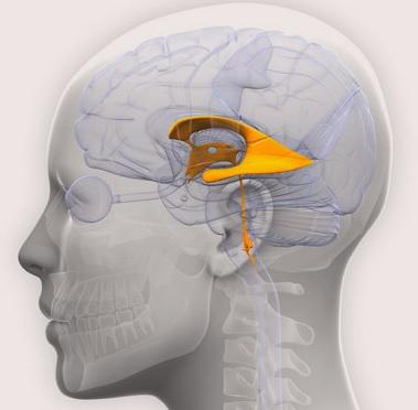 Асимметрия желудочков мозга