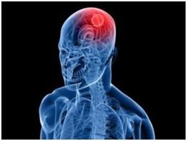 Лечение менингиомы без операции