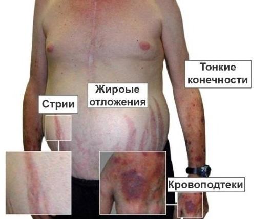 Диагностика болезни Иценко-Кушинга