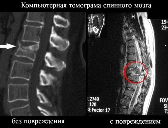 Контузия спинного мозга