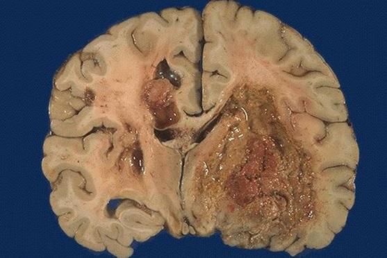 Мультиформная глиобластома