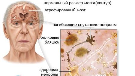 Симптомы отмирания клеток головного мозга
