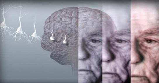 Сколько живут с болезнью Паркинсона