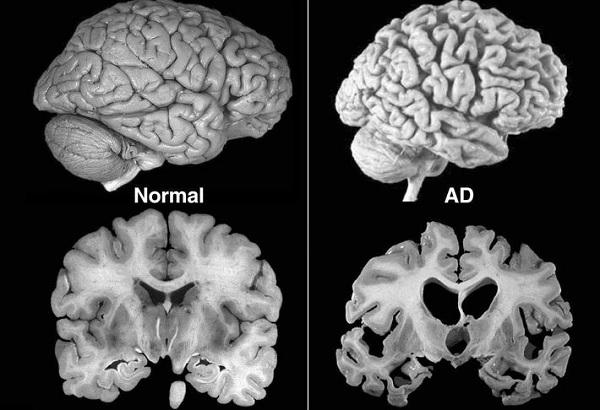 Атрофия головного мозга у взрослых