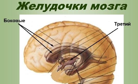 3 желудочек головного мозга