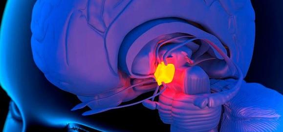 Микроаденома головного мозга