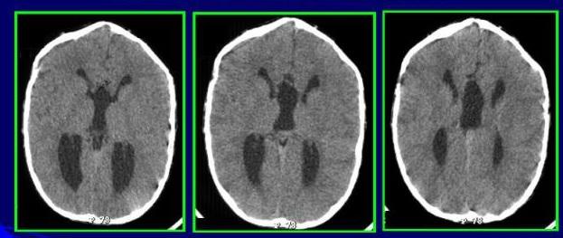 Агенезия мозолистого тела