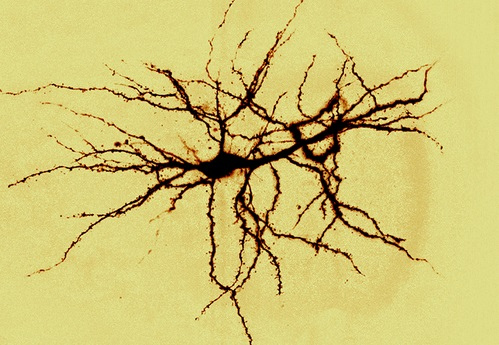 Дендриты нейрона