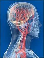 Кислородное голодание мозга
