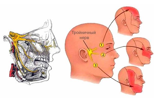 Блокада тройничного нерва