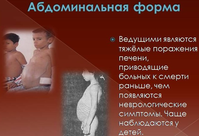 Брюшная форма болезни Вильсона-Коновалова у детей