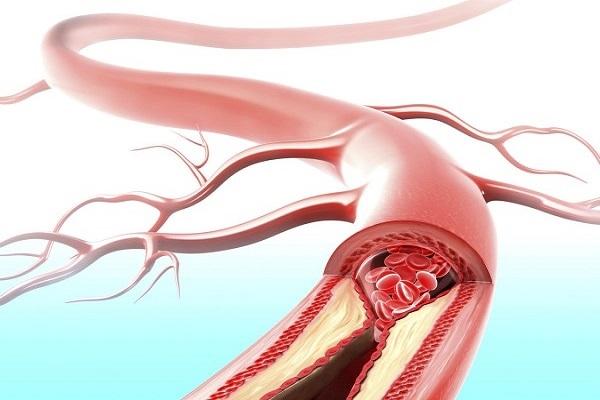 Атеросклеротическое поражение сосудов головного мозга